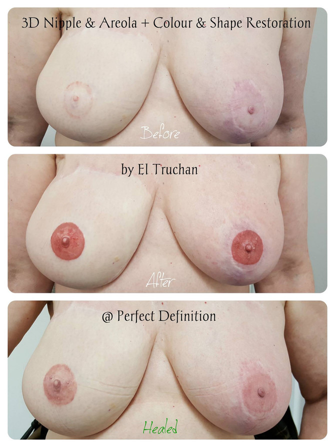 Areola + Colour & Shape Recovery Medical Tattoo by El Truchan @ Perfect Definition