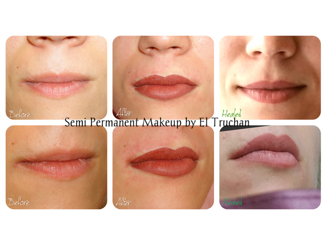 Lips Scar Tissue and Semi Permanent Makeup Healed Results