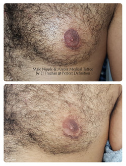 Male Nipple & Areola Medical Tattoo by E