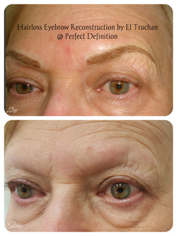 Hairloss Eyebrow Reconstruction by El Truchan _ Perfect Definition
