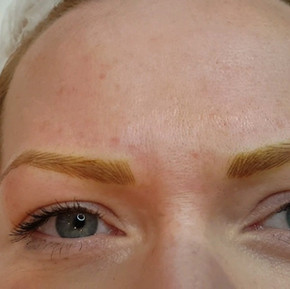 Strawberry Blond Alopecia 3D Realism Microblading by El Truchan