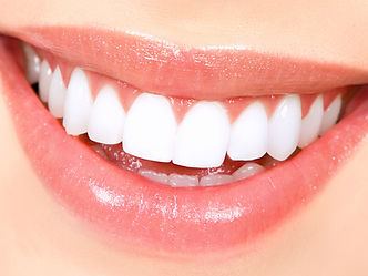 kma-dental-kingston-ontario-teeth-whitening-Dental-Office-in-Kingston-ON.jpg