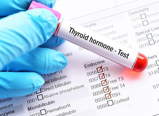 Thyroxine Test