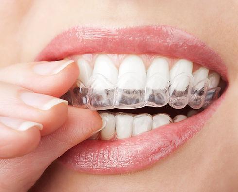 Ortodontik tedavi sonrası.jpg