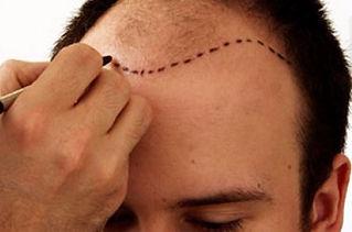 Изготовление системы замещения волос для мужчин