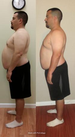 Weight Loss Program Albuquerque