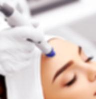 acne scarring treatment Huddersfield