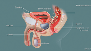 The Prostate Diaries: Active Surveillance: Living with Prostate Cancer.