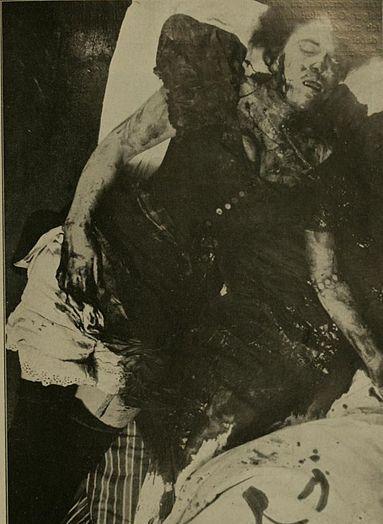 383px-Murder_Scene_pre-1910_03.jpg