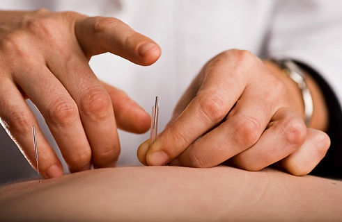 Inserting acupuncture needle