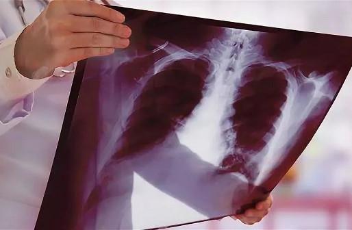 Туберкулез - угроза для взрослых и детей