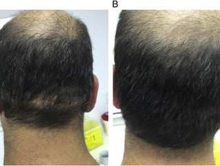 SMC and Scalp Micropigmentation Scar Camouflage Treatment In the International Journal of Women's De