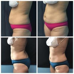 Upper and Lower abdomen were treated