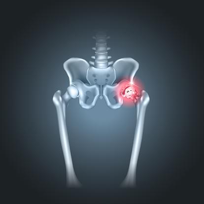 OSTEONECROSE DO QUADRIL .png