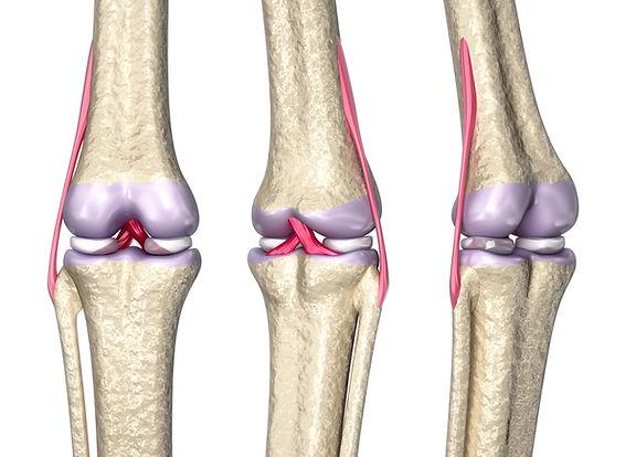 site-Dr. Lucas Damico - Lesão de ligame