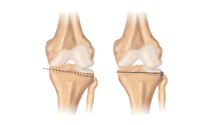 site-Dr. Lucas Damico - Osteotomiano Jo