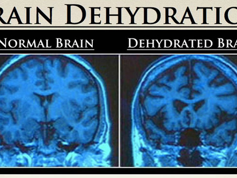 Brain Dehydration and Memory