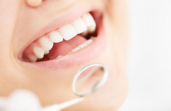 A picture of teeth whitening at dentistry with care mortdale