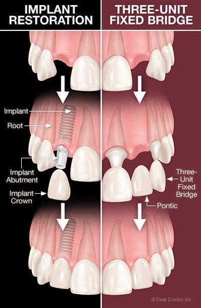 Dental Bridges at Dentistry with Care Mortdale