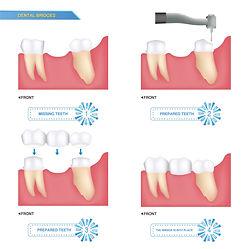 Dental Bridges 2 at Dentistry with Care Mortdale