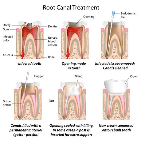 Root Canal Treatment at Dentistry with Care Mortdale
