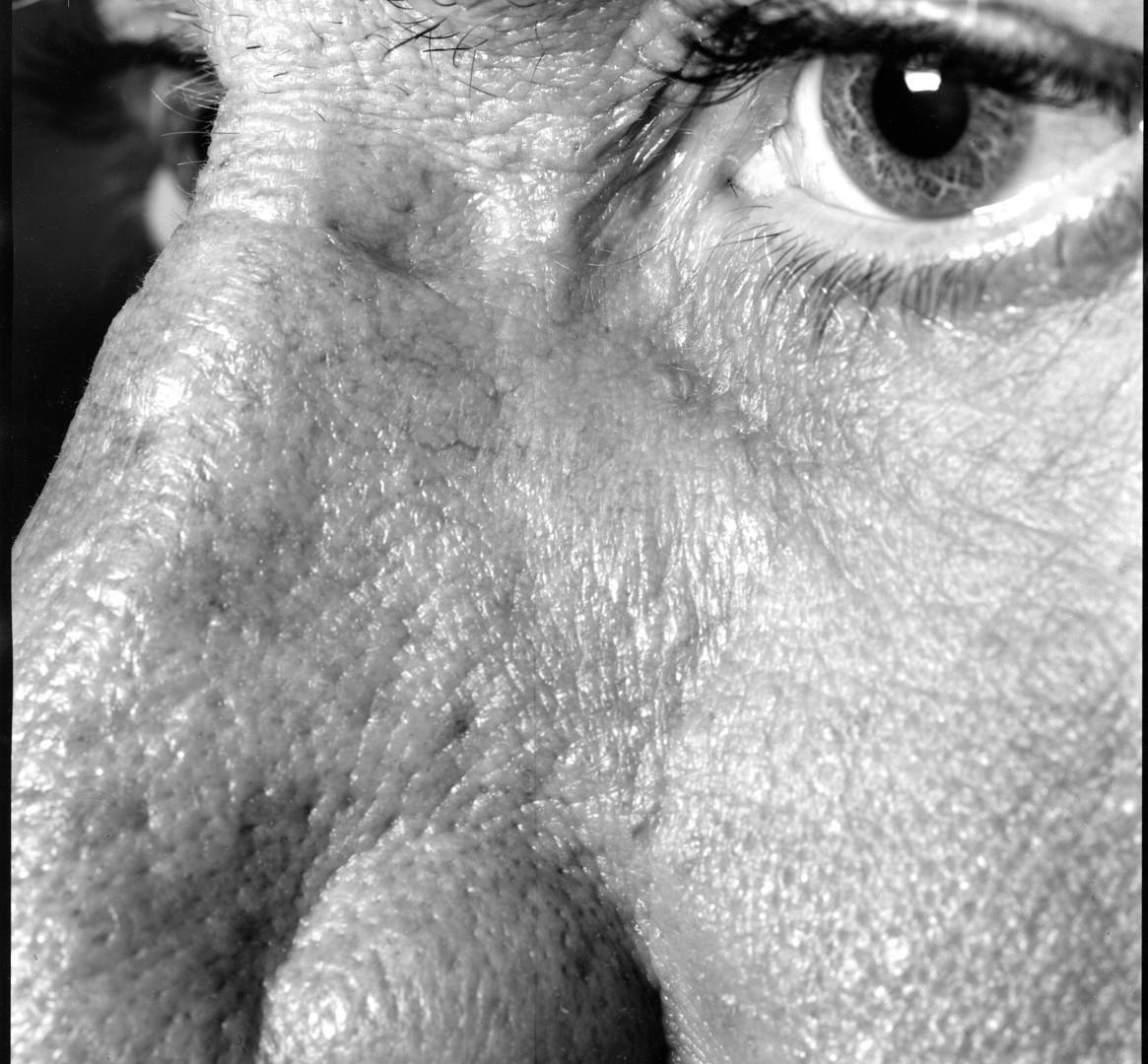 Nicholas Nixon, Self (02), Brookline, 2008