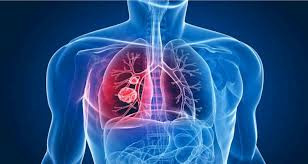 Fique atento aos sinais da Tuberculose