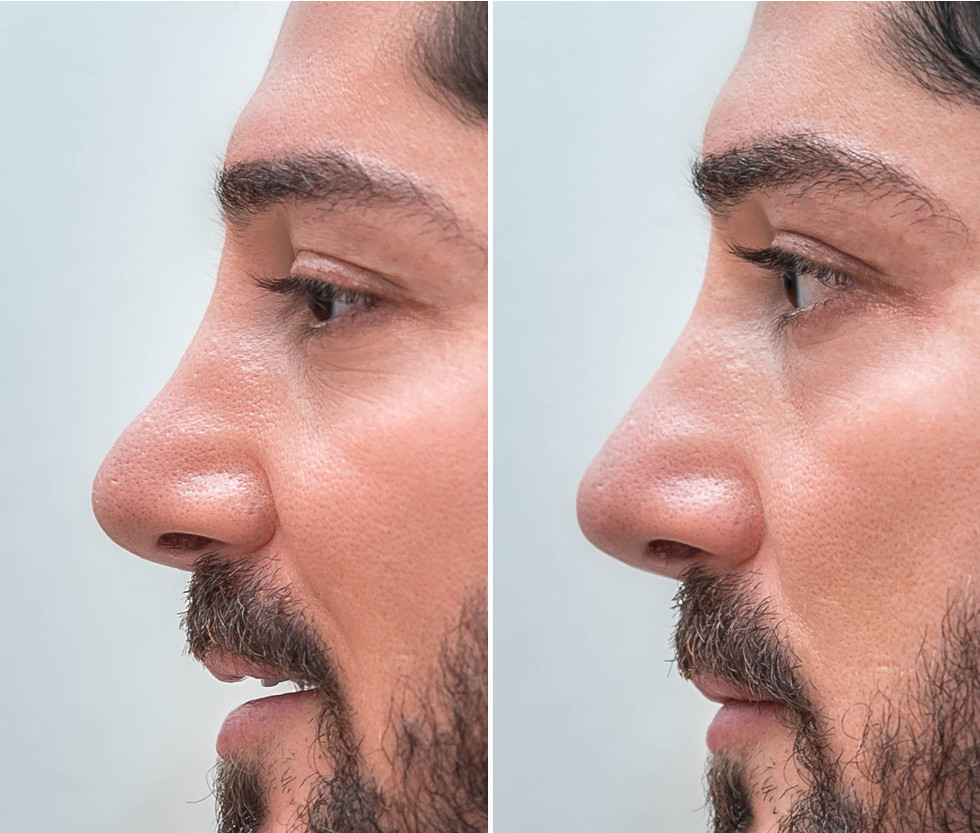 Non Surgical Nose Job