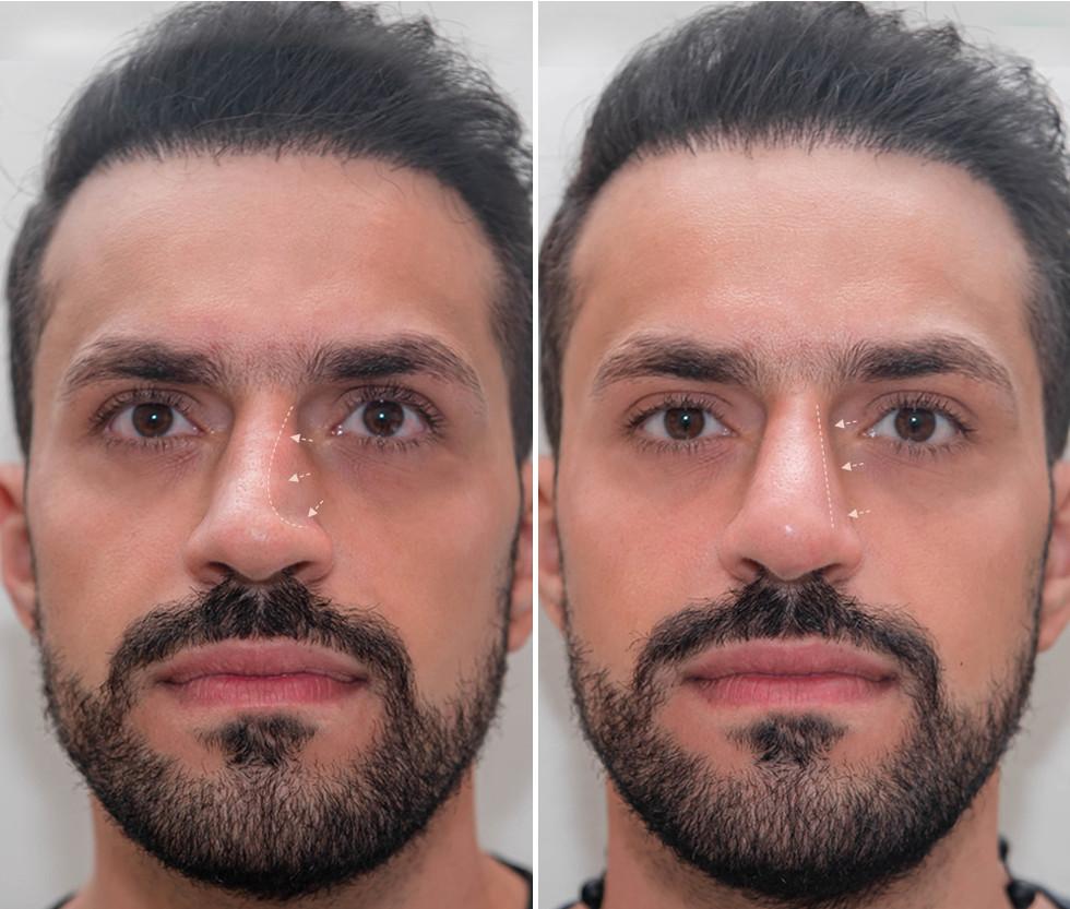 Non-Surgical Nose Filler
