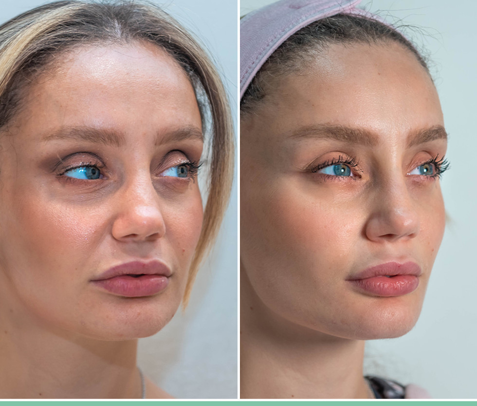 Liquid Face Lift with Fillers