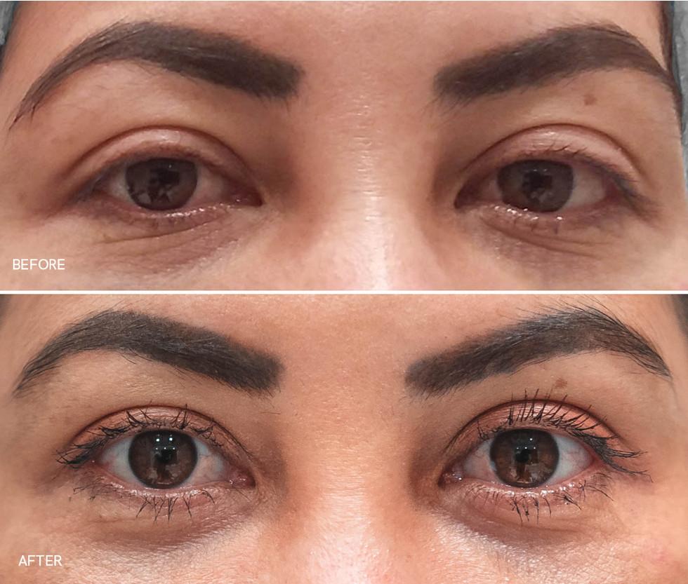 Plasmage (Non Surgical Eyelid Lift)