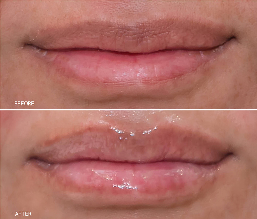 Corrected Lip Fillers