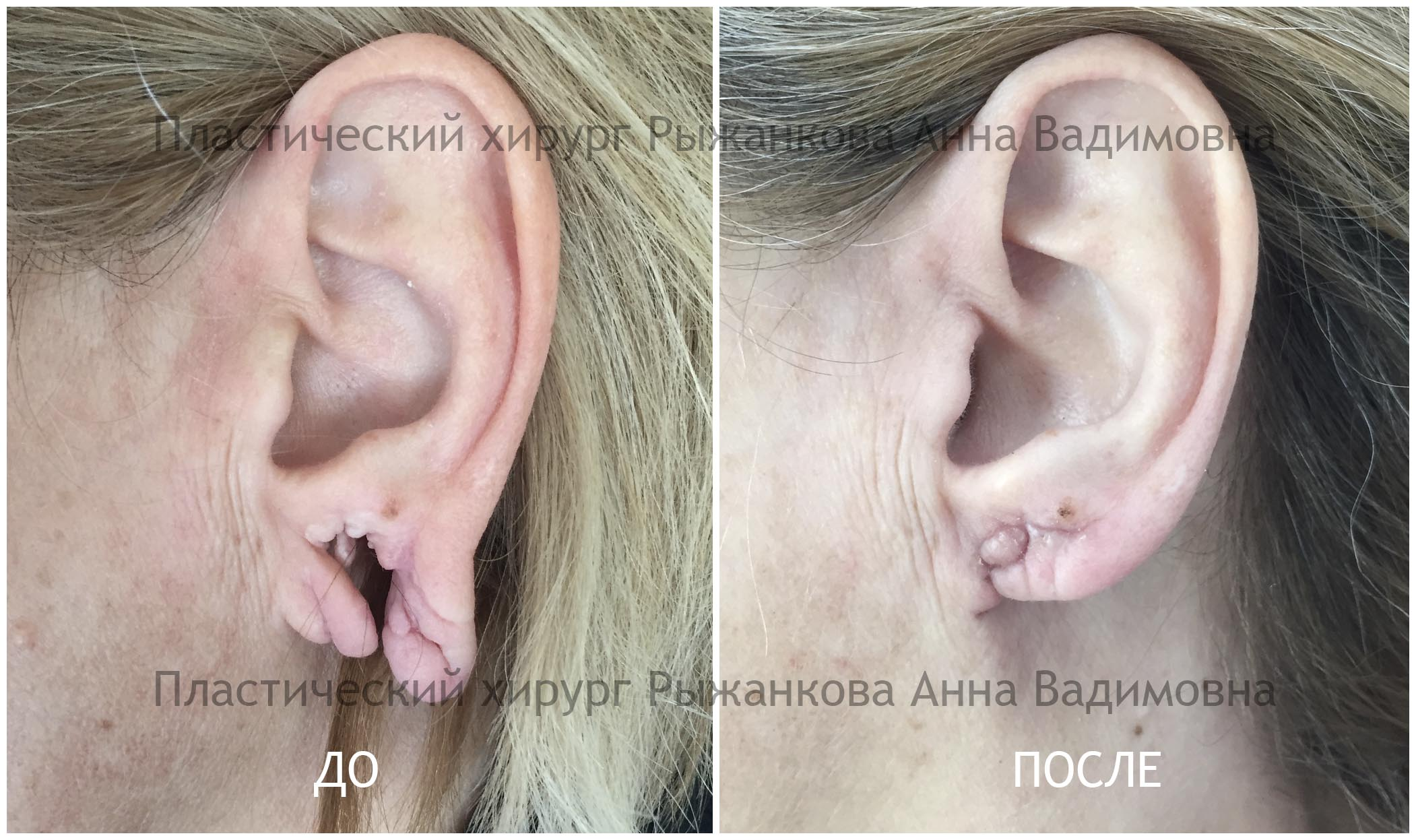 Коррекция мочки уха Фото До и После