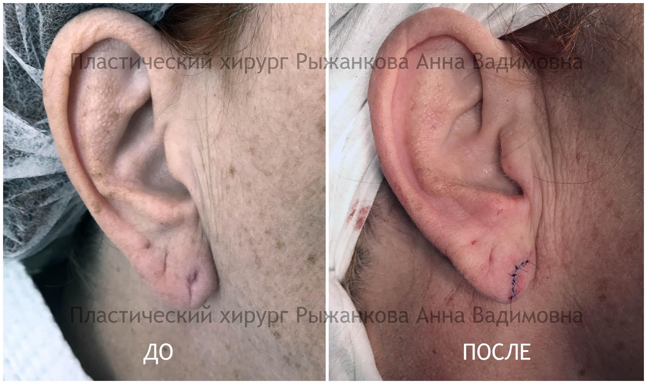 Коррекция мочки Фото До и После