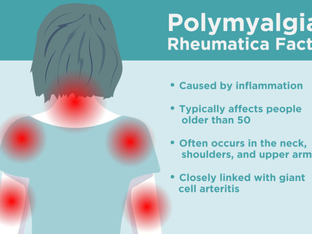 Bowen therapy for chronic conditions. A short case study of a client with Polymyalgia Rheumatica