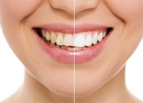 Teeth Whitening: All Details to Know