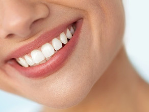 The Pros of Professional Teeth Whitening