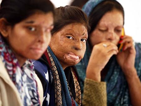 Acid Attacks in India by Ananya Raghavan