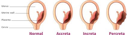 My Placenta Accreta Story Part 2