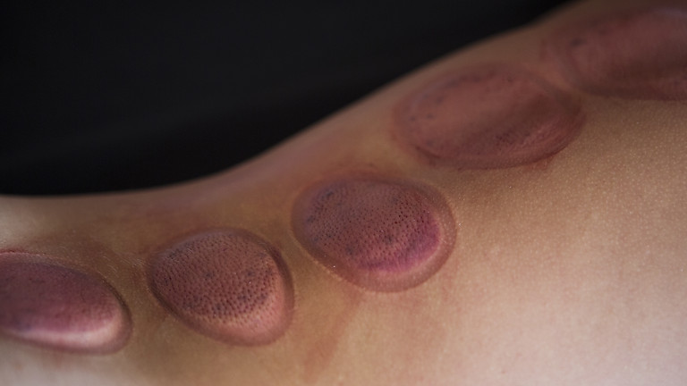 Introduction to Cupping Therapy (Live OnLine)