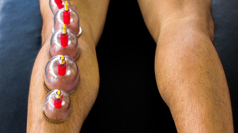 Advanced Cupping Techniques for the Lower Extremities (In Person)