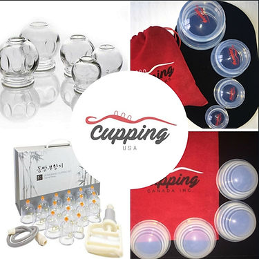 Cupping Affiliate .jpg