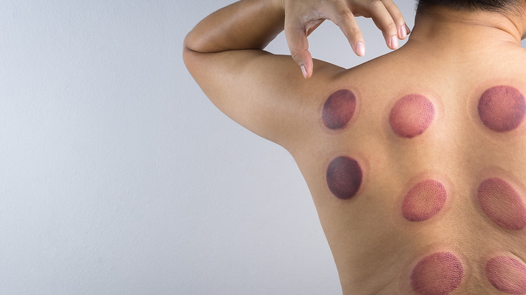 Advanced Cupping Techniques for the Upper Extremities (Live OnLine)