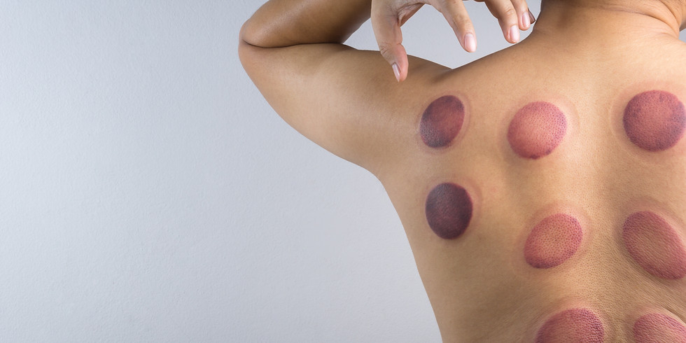 Introduction to Cupping Therapy