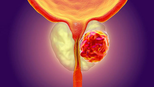 prostate cancer.jpg