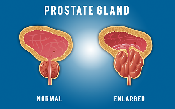 prostate gland.png