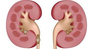 KidneyStone.jpg