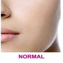 pele-normal-1