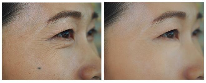 Wrinkle Lift BnA 02.jpg