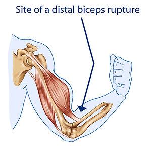 biceps tendon rupture.jpg